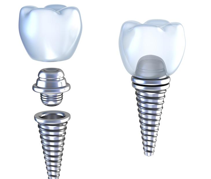Dental implants Hollywood